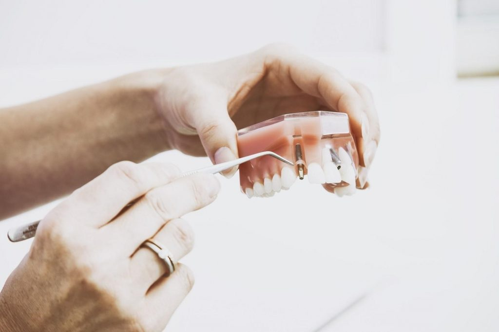 Cheap Dental Implants - Dr. Marino & Associates and Dr. Nassif & Associates - Affordable Dental Implants