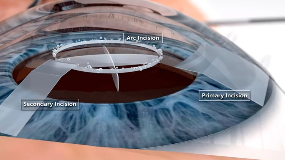 What to Expect During LASIK Surgery