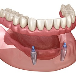 affordable dental implants near me lower denture